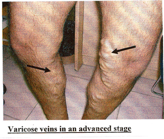 Have The Scary Blue Coloured Veins Surfaced Daily Mirror Sri