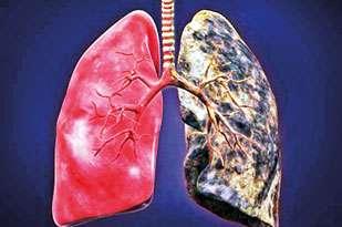 Noviembre es el mes de la concienciación sobre el cáncer de pulmón. ¡Difunda el mensaje antes de que se propague el cáncer! - Espejo diario
